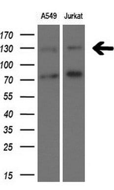 TSC1 Antibody in Western Blot (WB)