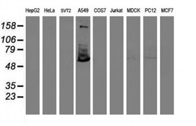 TULP3 Antibody in Western Blot (WB)