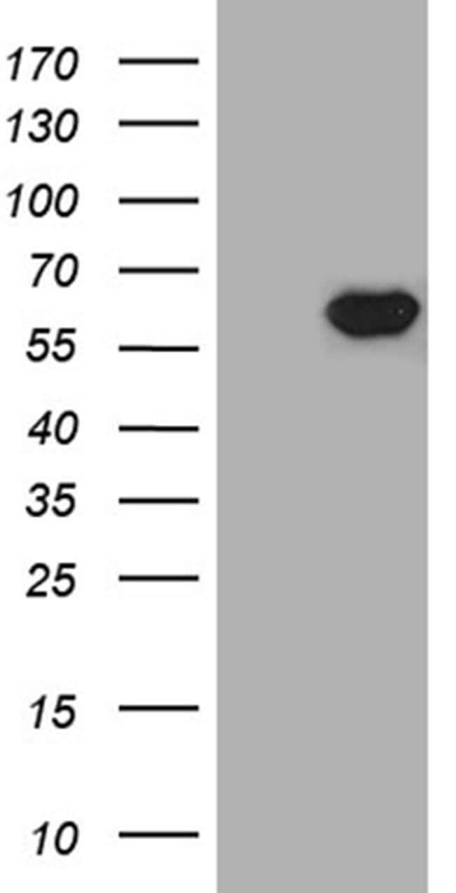 TXNRD1 Antibody in Western Blot (WB)