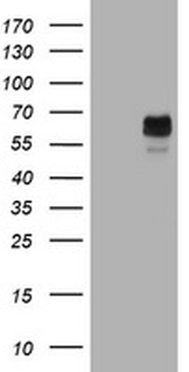 TYR Antibody in Western Blot (WB)