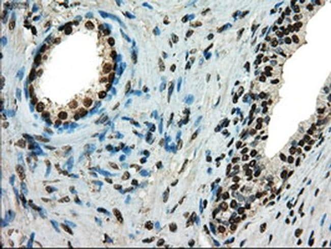 TYRO3 Antibody in Immunohistochemistry (Paraffin) (IHC (P))