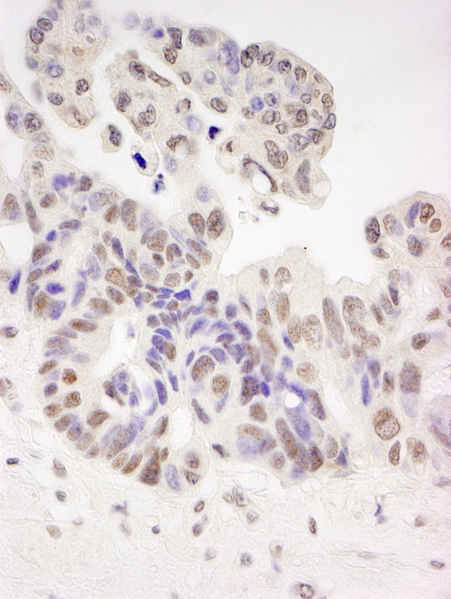 Tat-SF1 Antibody in Immunohistochemistry (IHC)
