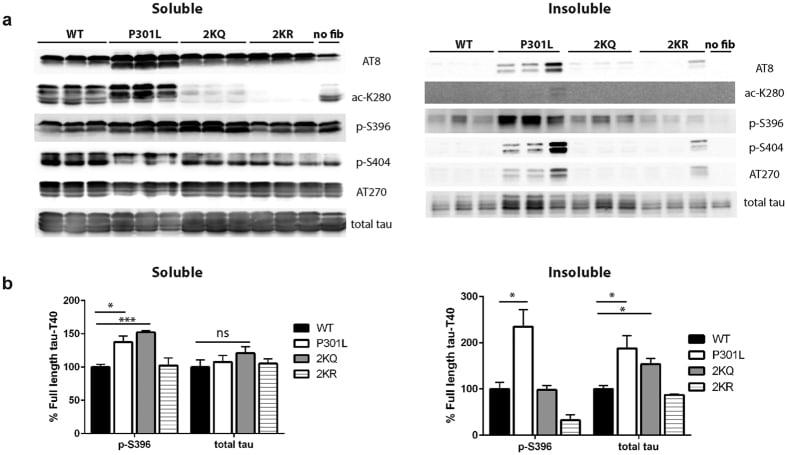 Phospho-Tau (Thr181) Antibody
