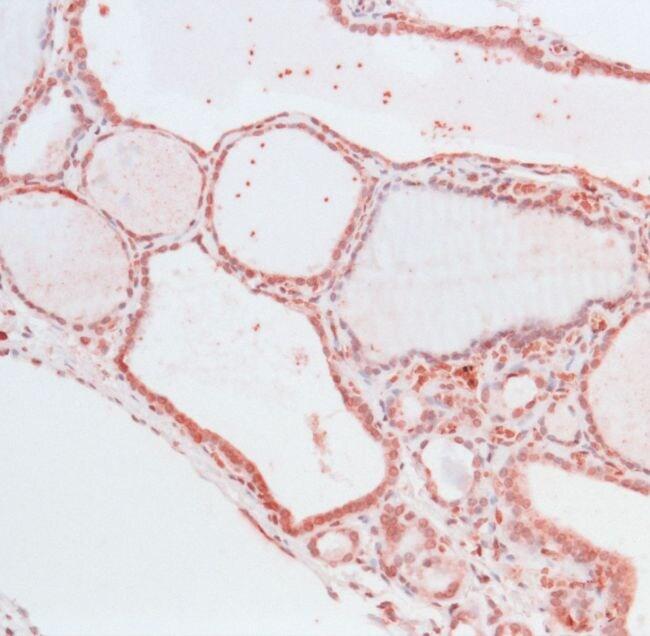 THRA Antibody in Immunohistochemistry (IHC)