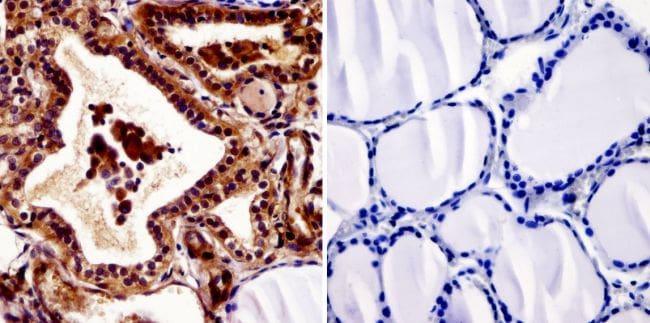 THRA/THRB Antibody in Immunohistochemistry (IHC)
