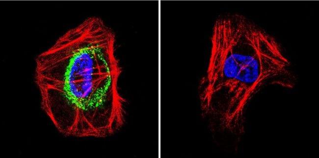TSH Receptor Antibody in Immunofluorescence (IF)