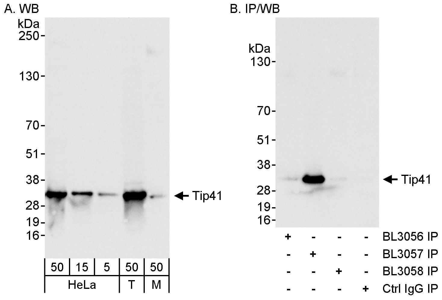Tip41 Antibody in Western Blot (WB)