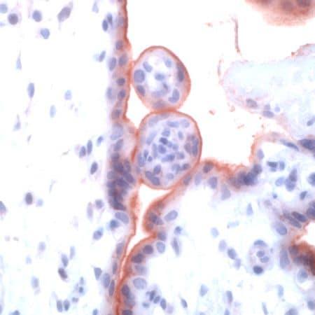 TGFBR1 Antibody in Immunohistochemistry (IHC)