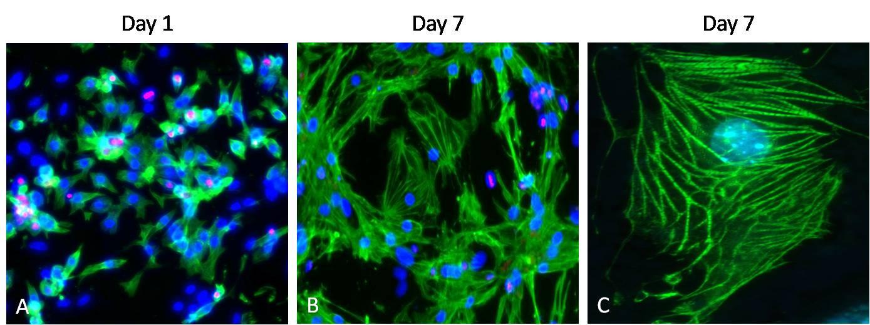 Cardiac Troponin T Antibody in Immunofluorescence (IF)