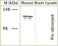 TRPA1 Antibody in Western Blot (WB)