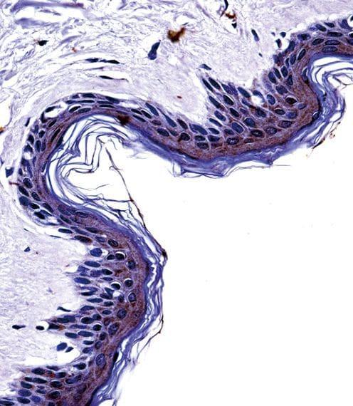 Tyrosinase Antibody in Immunohistochemistry (IHC)
