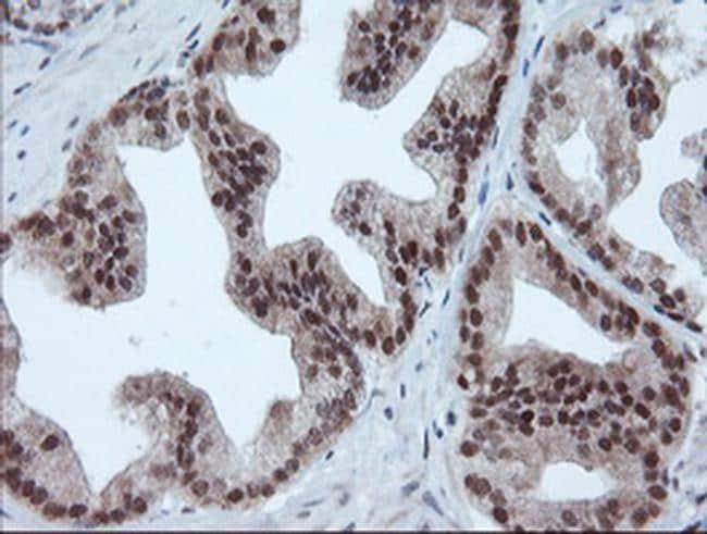 UBE2E3 Antibody in Immunohistochemistry (Paraffin) (IHC (P))
