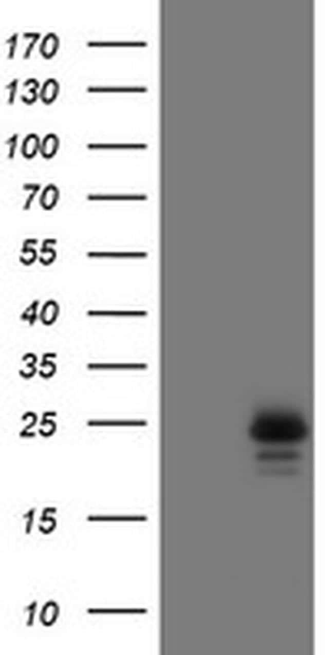 UBE2E3 Antibody in Western Blot (WB)