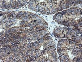 UBE2G2 Antibody in Immunohistochemistry (Paraffin) (IHC (P))