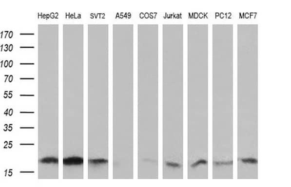 UBE2G2 Antibody in Western Blot (WB)