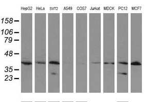 UBE2J1 Antibody in Western Blot (WB)