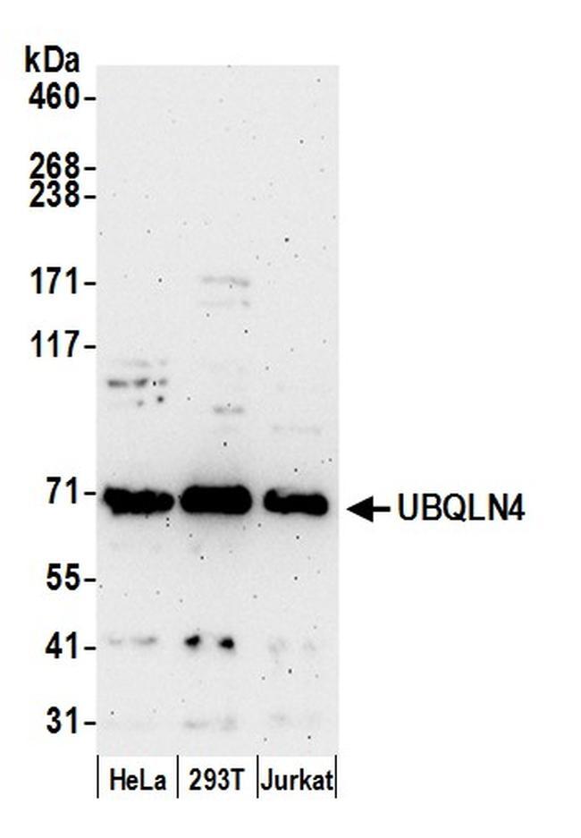 UBQLN4/CIP75/Ubiquilin 4 Antibody in Western Blot (WB)