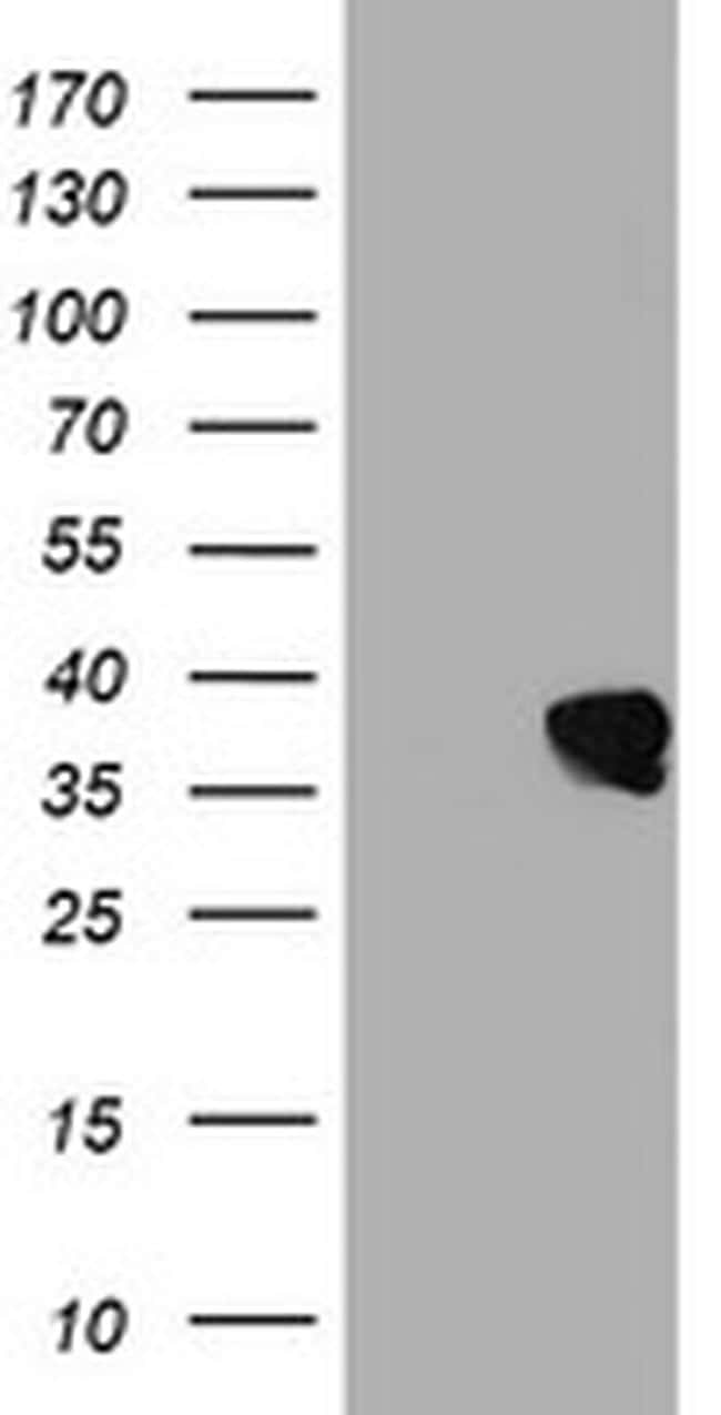 UBXN2B Antibody in Western Blot (WB)