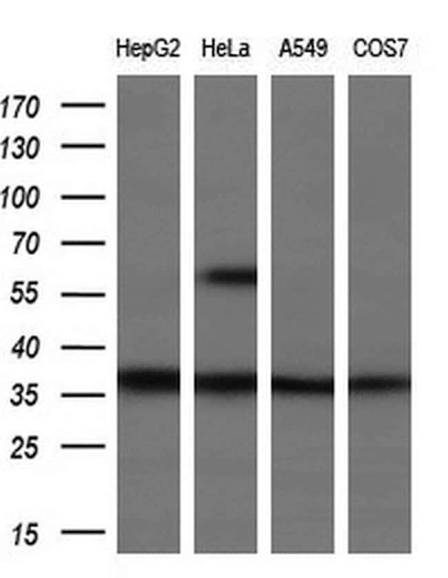 UCK1 Antibody in Western Blot (WB)