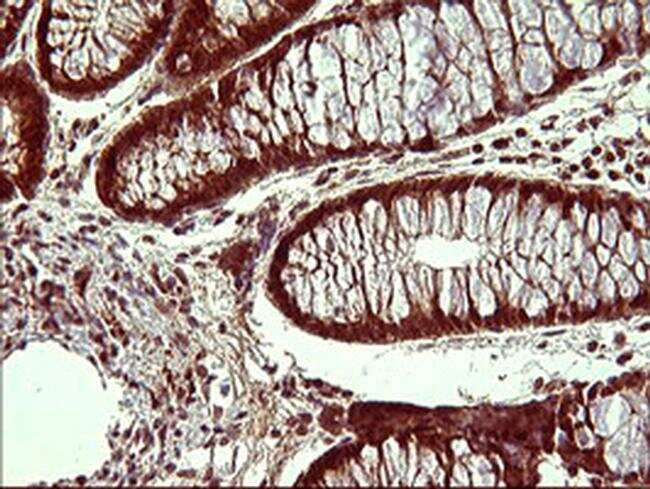UPRT Antibody in Immunohistochemistry (Paraffin) (IHC (P))