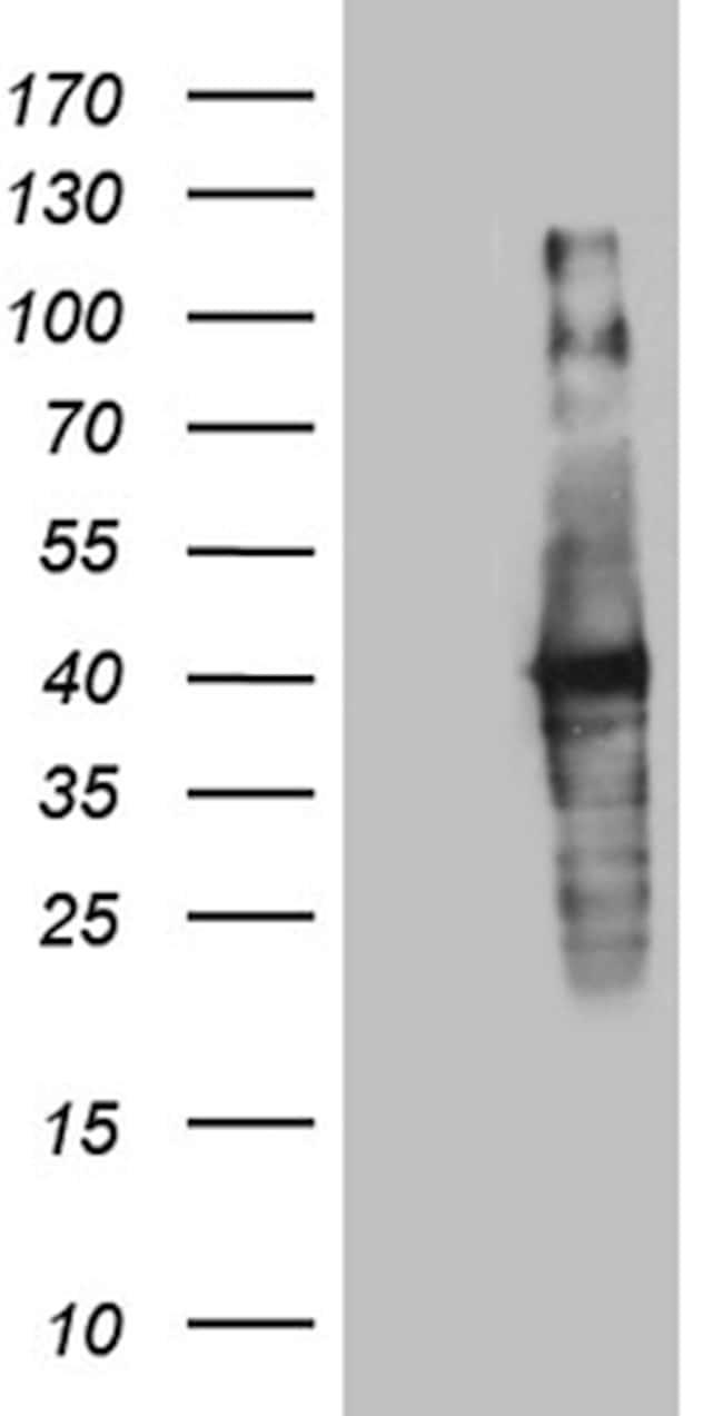 UPRT Antibody in Western Blot (WB)