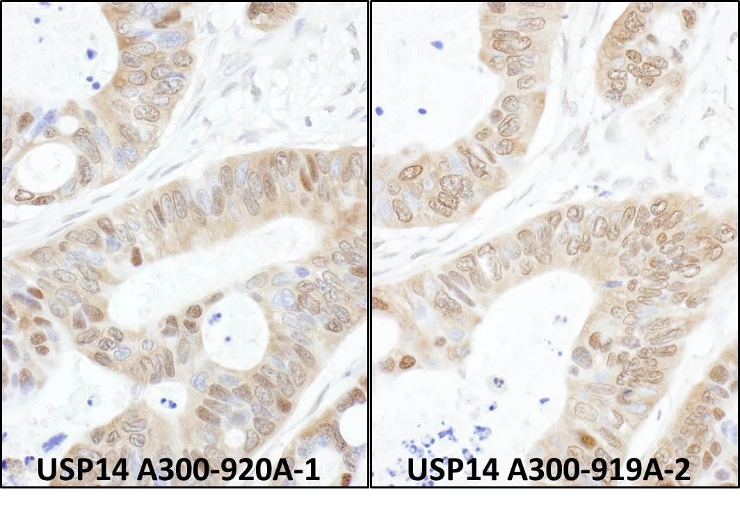 USP14 Antibody in Immunohistochemistry (IHC)