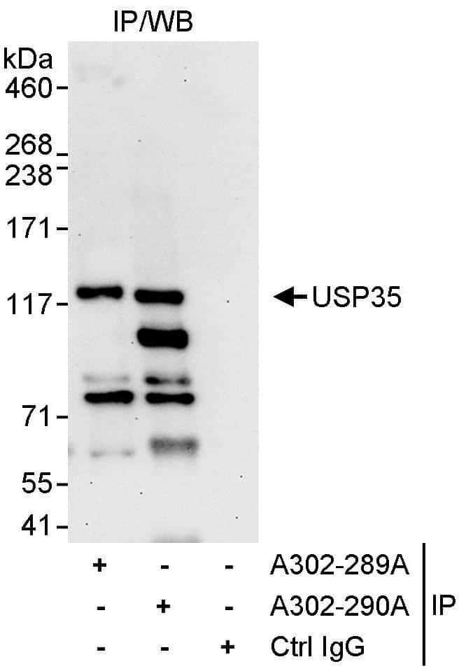 USP35 Antibody in Immunoprecipitation (IP)