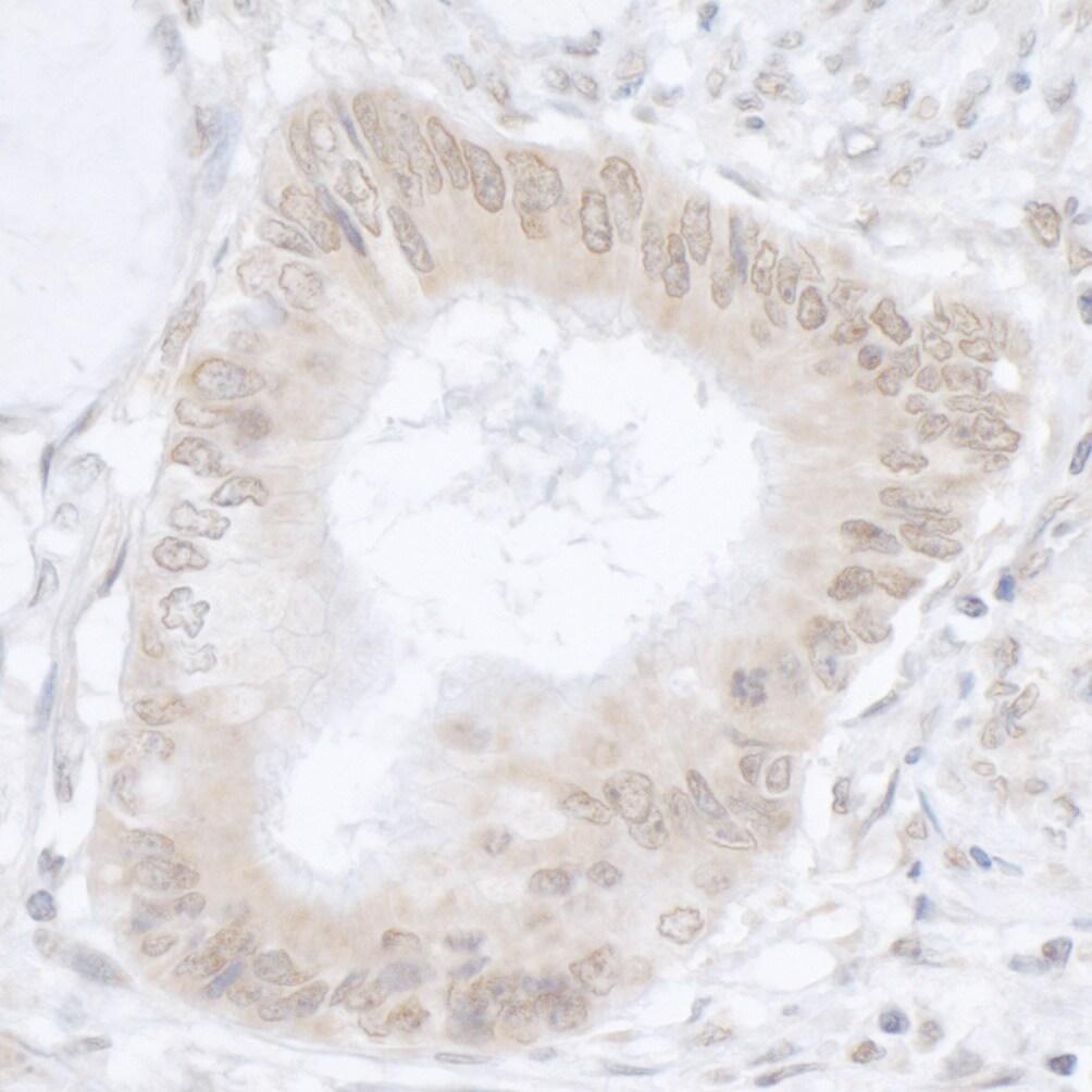 USP36/DUB1 Antibody in Immunohistochemistry (IHC)