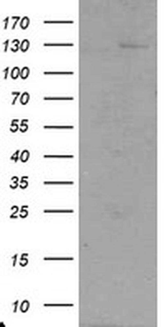 USP36 Antibody in Western Blot (WB)