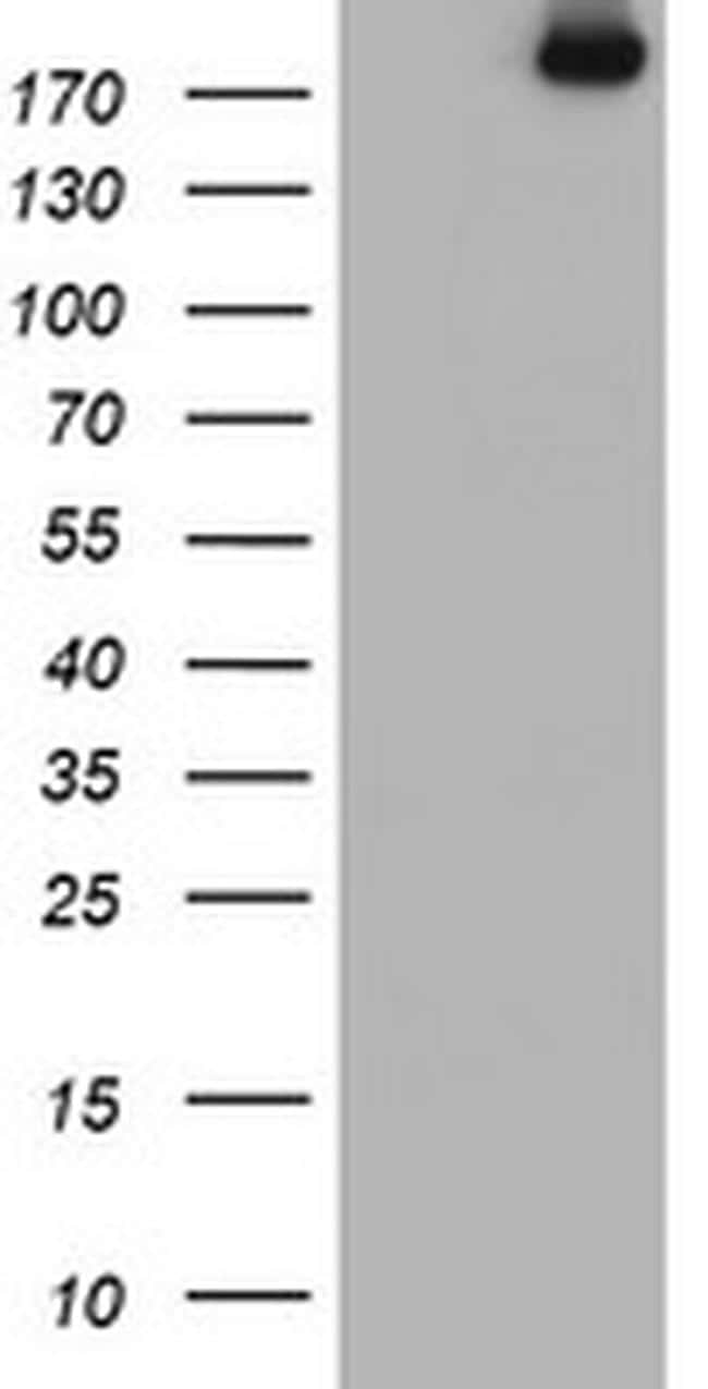USP9X Antibody in Western Blot (WB)
