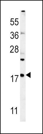 VAMP4 Antibody in Western Blot (WB)