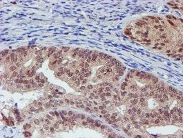 VCAM1 Antibody in Immunohistochemistry (Paraffin) (IHC (P))