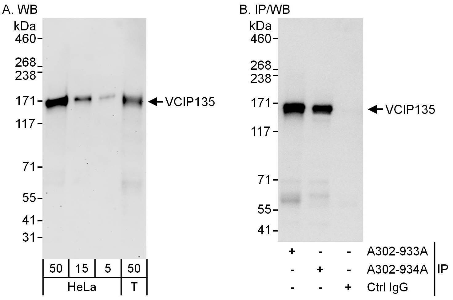 VCIP135 Antibody in Western Blot (WB)