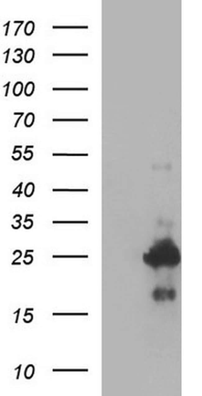 VEGFB Antibody in Western Blot (WB)