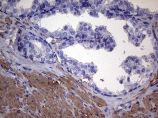 VEGFC Antibody in Immunohistochemistry (Paraffin) (IHC (P))
