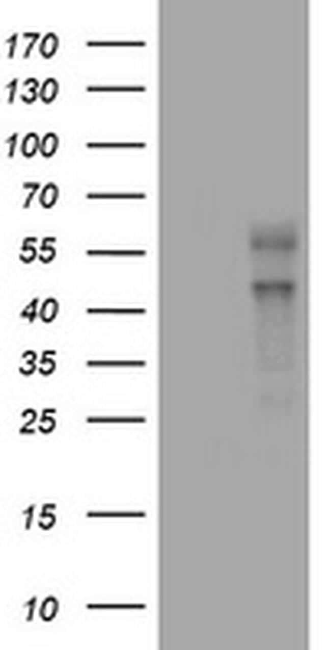VEGFC Antibody in Western Blot (WB)