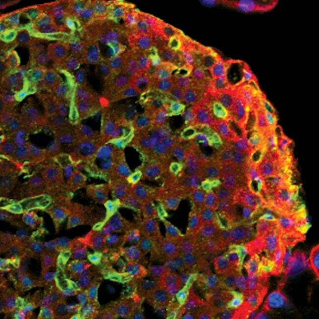 VEGF Receptor 2 Antibody in Immunofluorescence (IF)