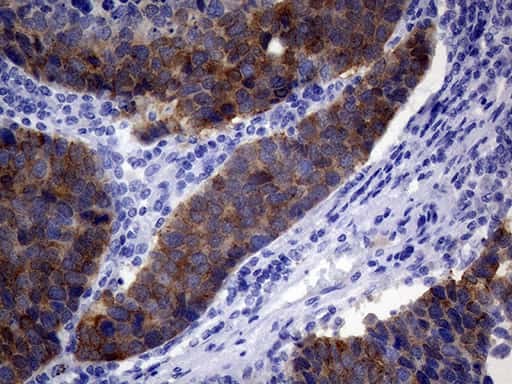 VIL1 Antibody in Immunohistochemistry (Paraffin) (IHC (P))