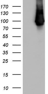 VIL1 Antibody in Western Blot (WB)