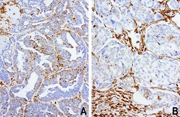 VIM Antibody in Immunohistochemistry (Paraffin) (IHC (P))
