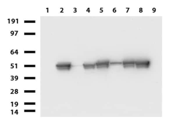 VIM Antibody in Western Blot (WB)