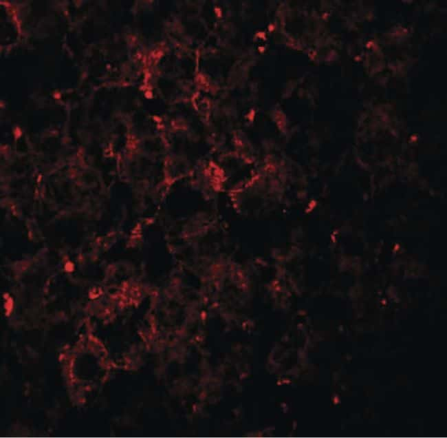 VPS39 Antibody in Immunohistochemistry (IHC)