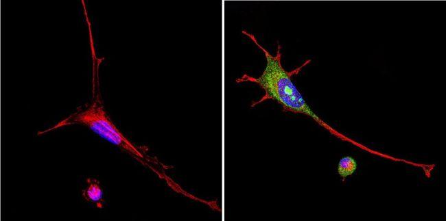 VRK1 Antibody in Immunofluorescence (IF)