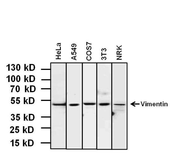 Vimentin Antibody Monoclonal Sp20