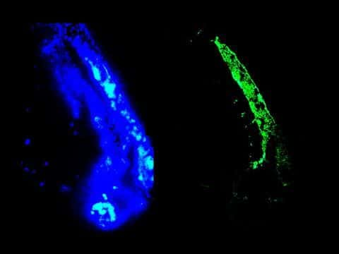 Vimentin Antibody in Immunohistochemistry (IHC)