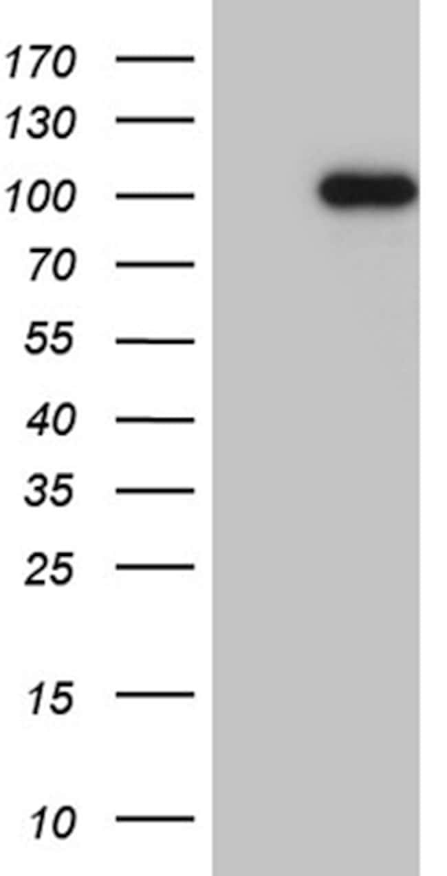 WHSC1L1 Antibody in Western Blot (WB)