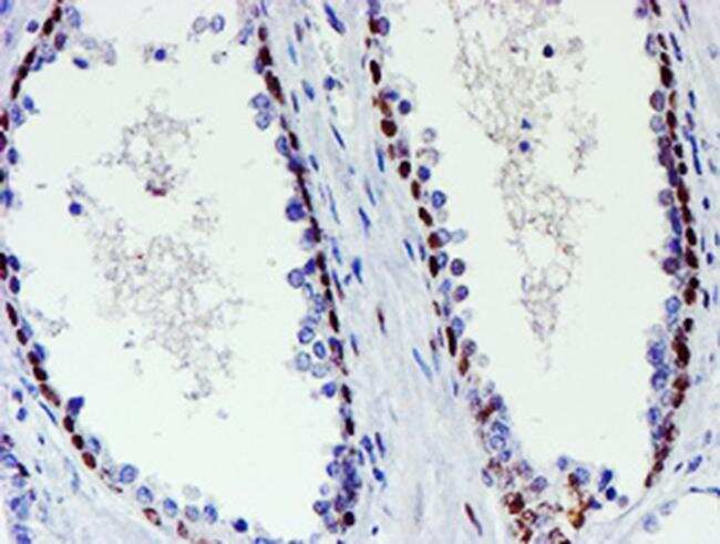 WWTR1 Antibody in Immunohistochemistry (Paraffin) (IHC (P))