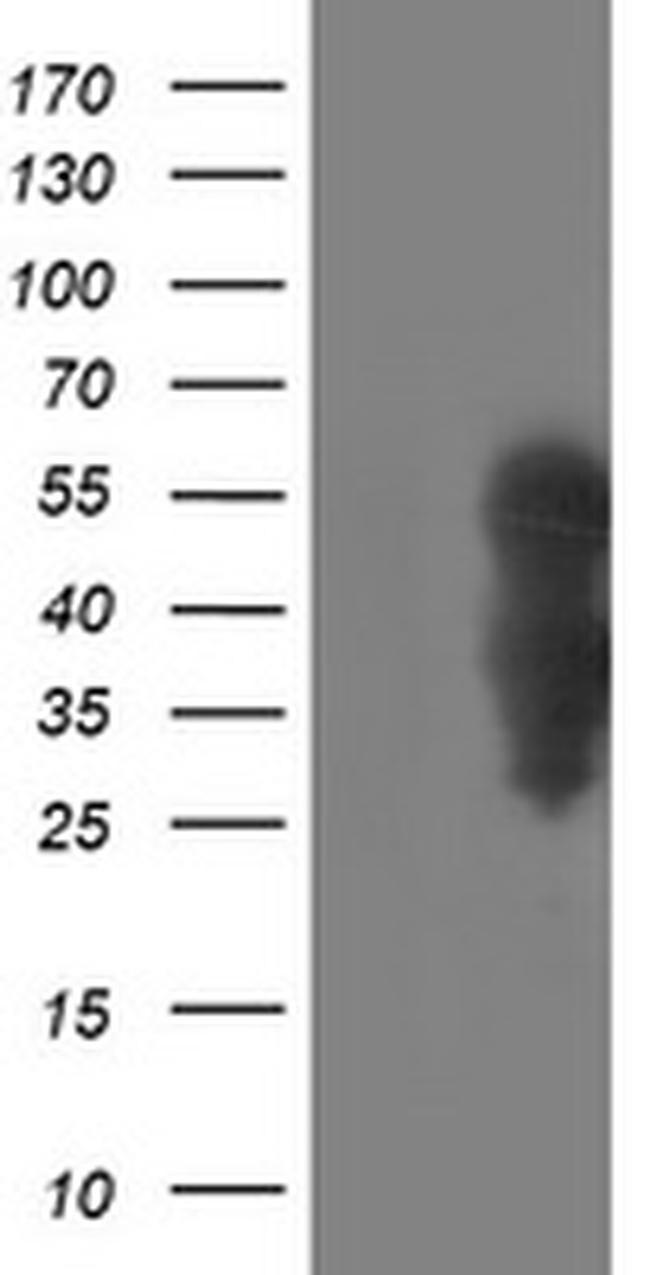 WWTR1 Antibody in Western Blot (WB)