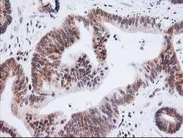XPF Antibody in Immunohistochemistry (Paraffin) (IHC (P))