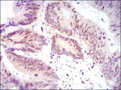 YAP1 Antibody in Immunohistochemistry (IHC)